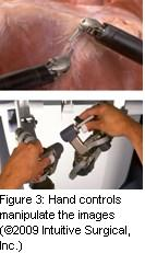 Figure 3: Hand controls manipulate the images (©2009 Intuitive Surgical, Inc.)